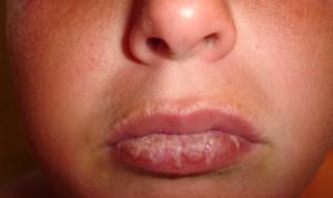 sunburned-lips